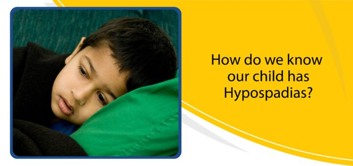 How do we know our child has hypospadias