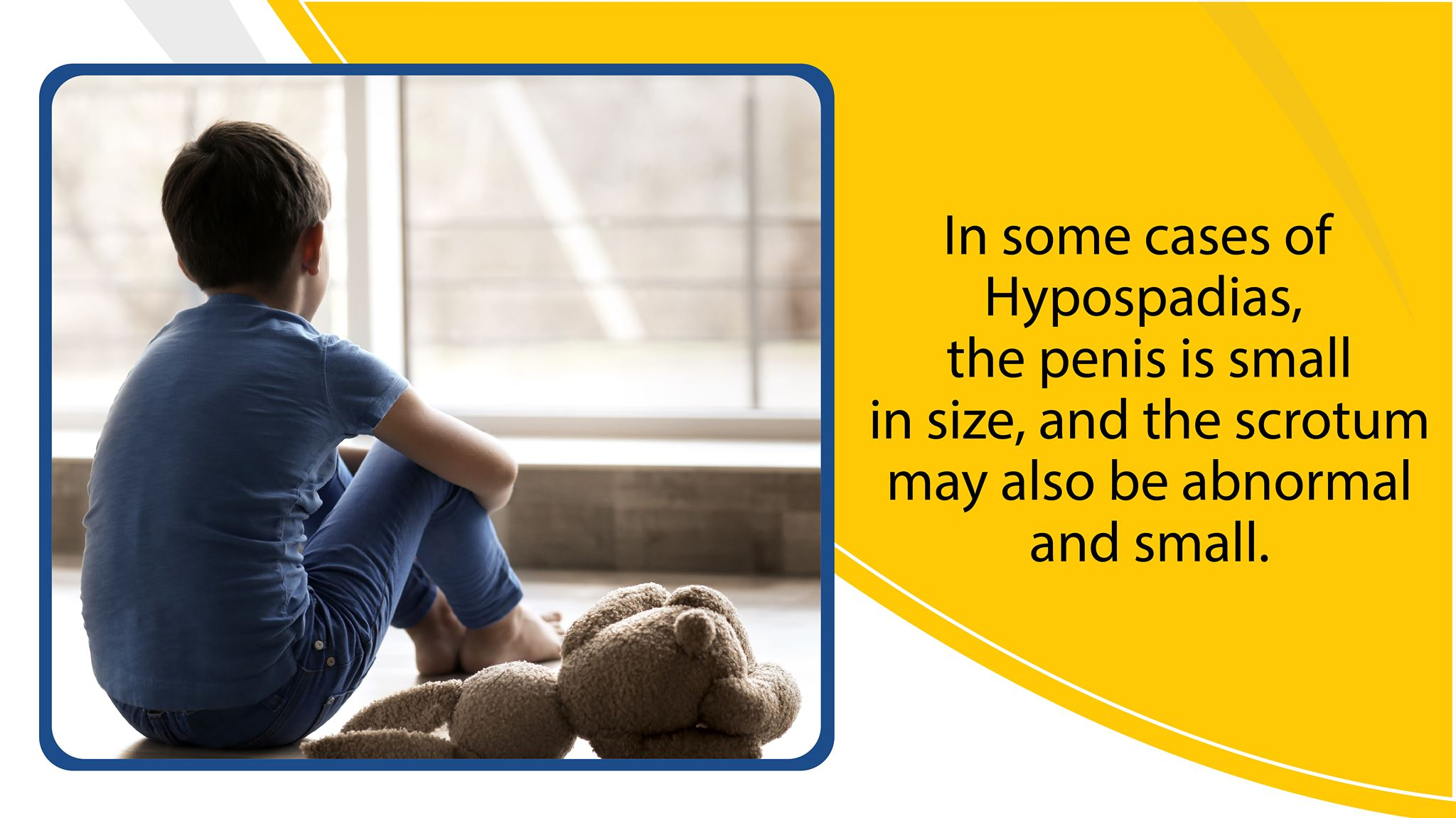 In some cases of hypospadias, the penis is small in size