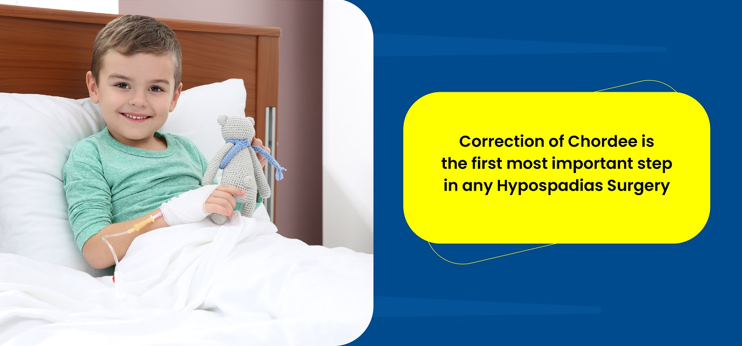 Correction of Chordee is the first most important step in any Hypospadias Surgery